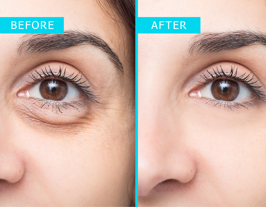 Blepharoplasty Toowoomba Westridge Medical