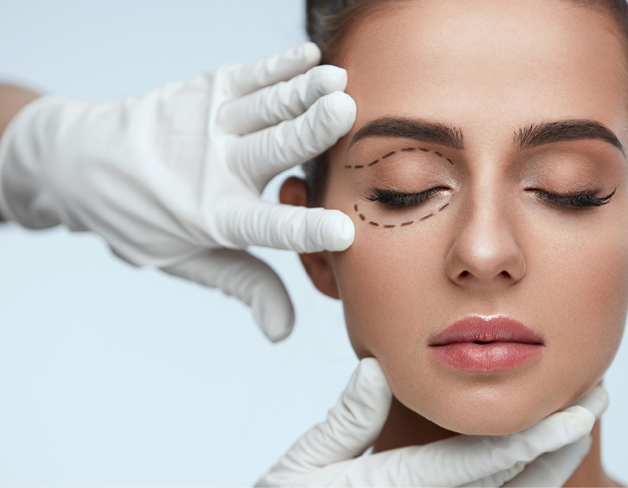 Blepharoplasty procedure Toowoomba