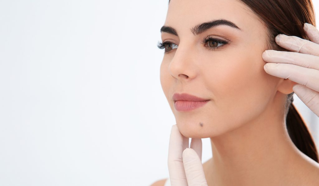 Westridge Medical Cosmetic Mole Removal