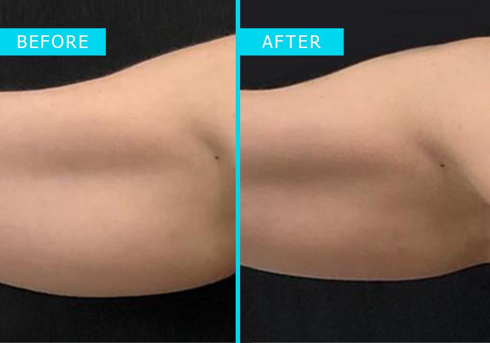 Westridge-Medical-truSculpt-iD-fat-removal-