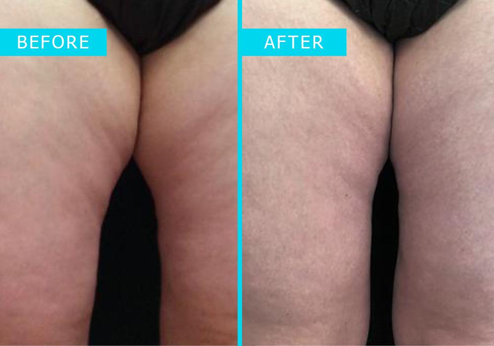 Westridge-Medical-truSculpt-iD-fat-removal-2