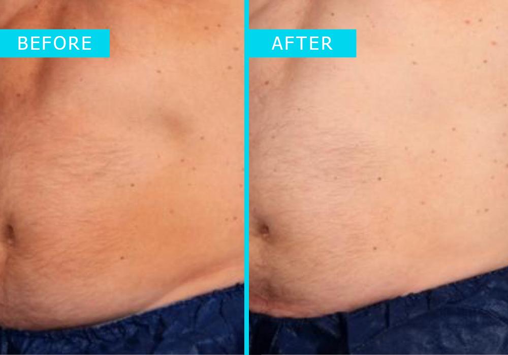 Westridge-Medical-truSculpt-iD-fat-removal-3
