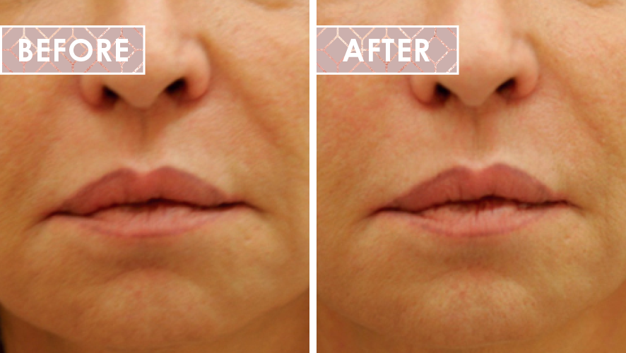 Vinesse-Aesthetics-and-Cosmetic-Clinic-HIFU-Before-After-0