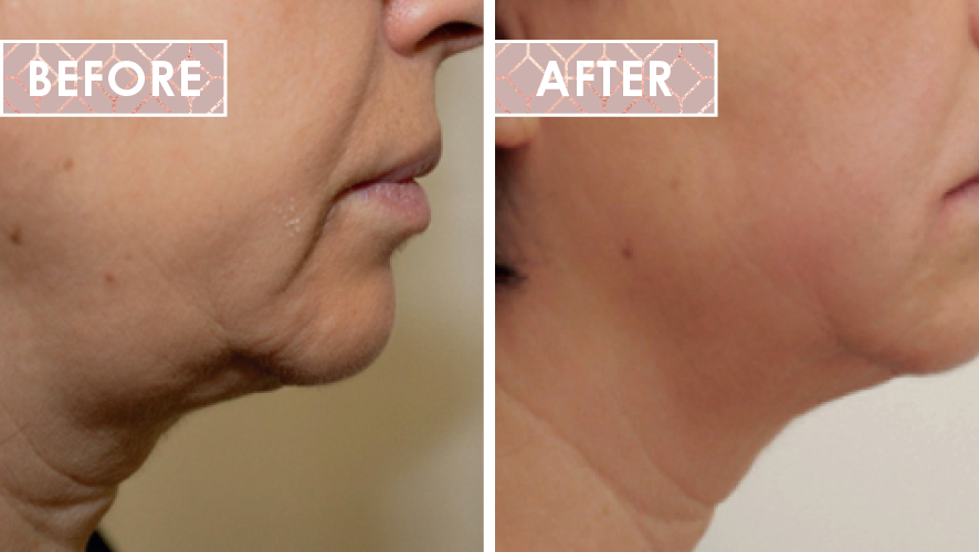 Vinesse-Aesthetics-and-Cosmetic-Clinic-HIFU-Before-After-02