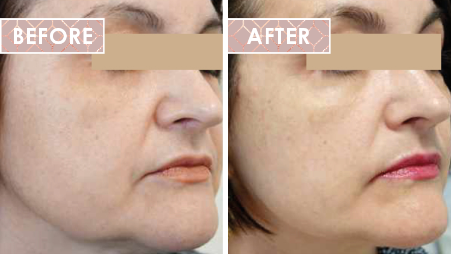 Vinesse-Aesthetics-and-Cosmetic-Clinic-HIFU-Before-After-03