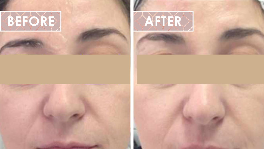 Vinesse-Aesthetics-and-Cosmetic-Clinic-HIFU-Before-After-05
