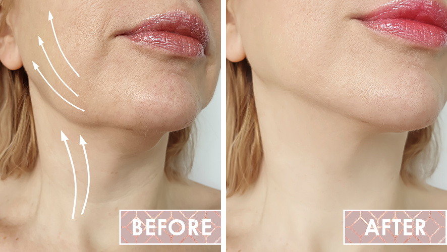 Vinesse-Aesthetics-and-Cosmetic-Clinic-Results-Thread-Lifting-0-Westridge-Medical