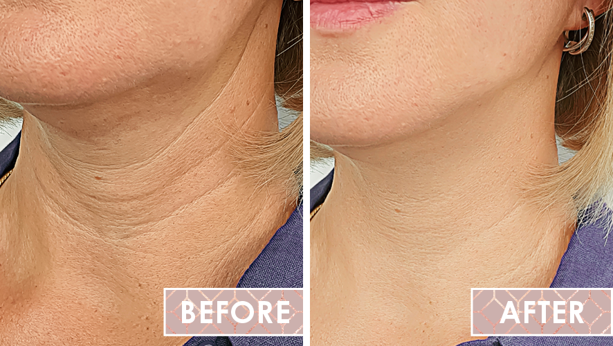Vinesse-Aesthetics-and-Cosmetic-Clinic-Results-Thread-Lifting-02-Westridge-Medical