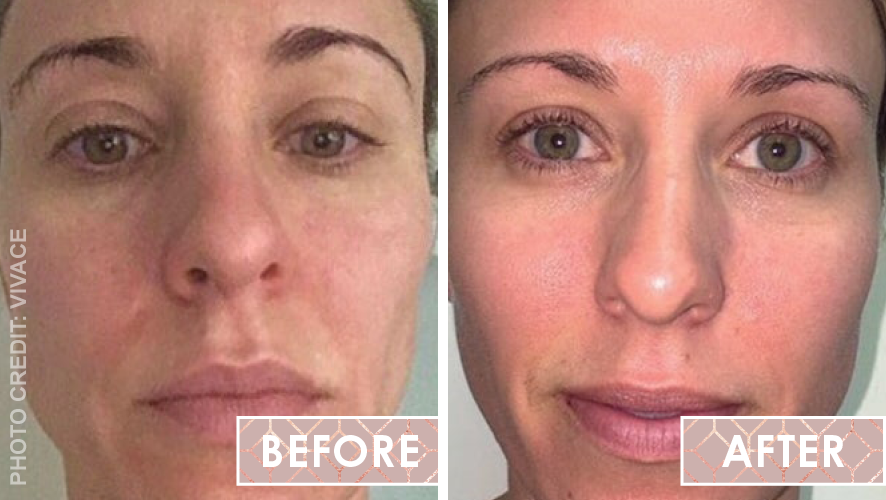 Micro-needling Vivace Before After