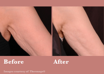 Thermage FLX-Digi-Before-After-Body-0