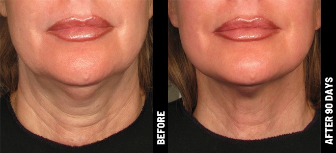 Ultherapy-Before-After-BA_cheek@1x