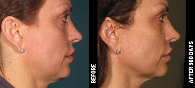 Ultherapy-Before-After-BA_face@1x
