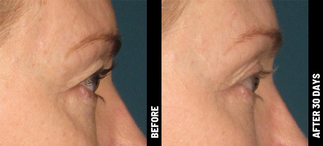 Ultherapy-Before-After-Brow_01@1x