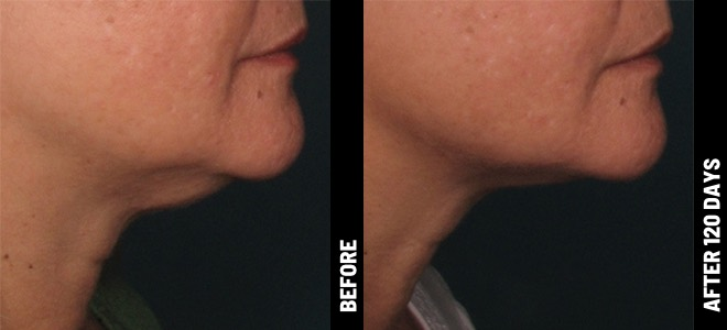 Ultherapy-Before-After-Chin_01@1x