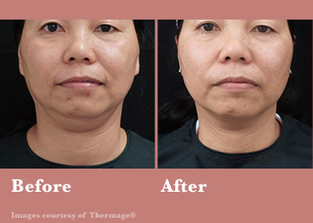 Westridge Medical Thermage FLX- Before After Results Vinesse Aesthetics