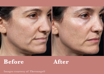 Westridge Medical Thermage FLX- Before After Results Vinesse Aesthetics2