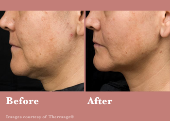 Westridge Medical Thermage FLX- Before After Results Vinesse Aesthetics4