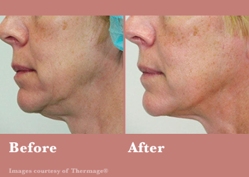 Westridge Medical Thermage FLX- Before After Results Vinesse Aesthetics5