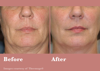 Westridge Medical Thermage FLX- Before After Results Vinesse Aesthetics6